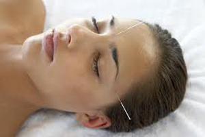 acupuncture-for-headaches